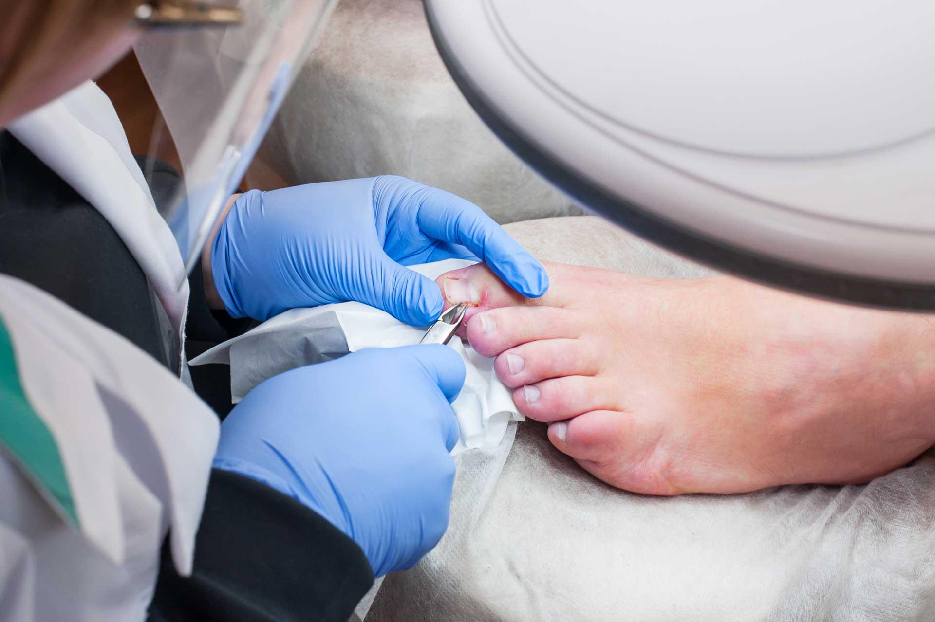 Fußpflege Diabetiker Rodgau Mobile medizinische Fußpflege Rodgau / Rödermark